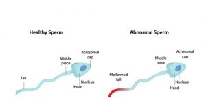 Male infertility treatment in jaipur